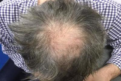 PRP TREATMENT FOR HAIR REJUVENATION