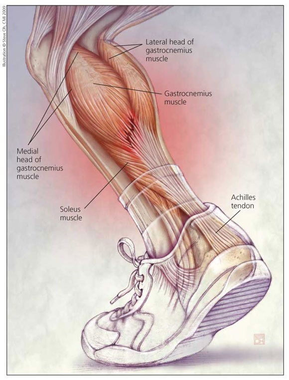 Achilles Tendonitis - What You Need To Know